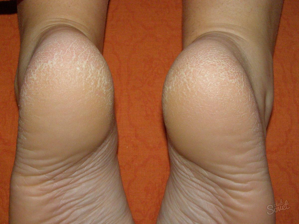 Фото пяток ног девушек 25 фотография