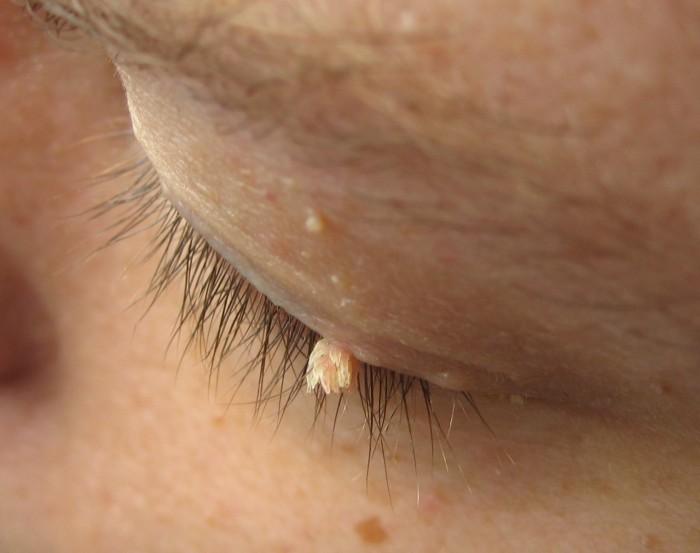 Папилломы вокруг глаз лечение народными средствами