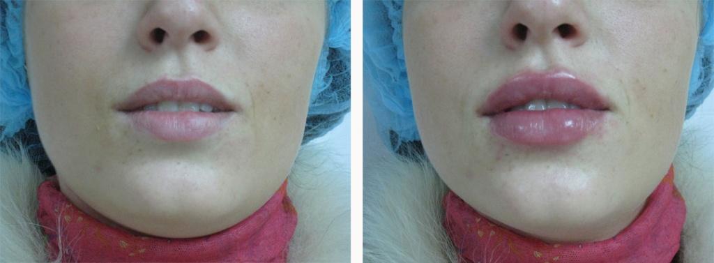 Увеличение губ уколами