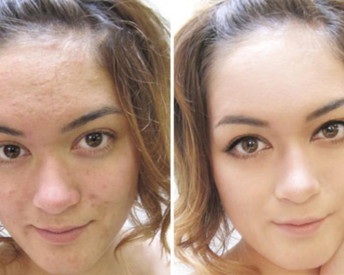 Как сделать чтобы лицо было белым и чистым