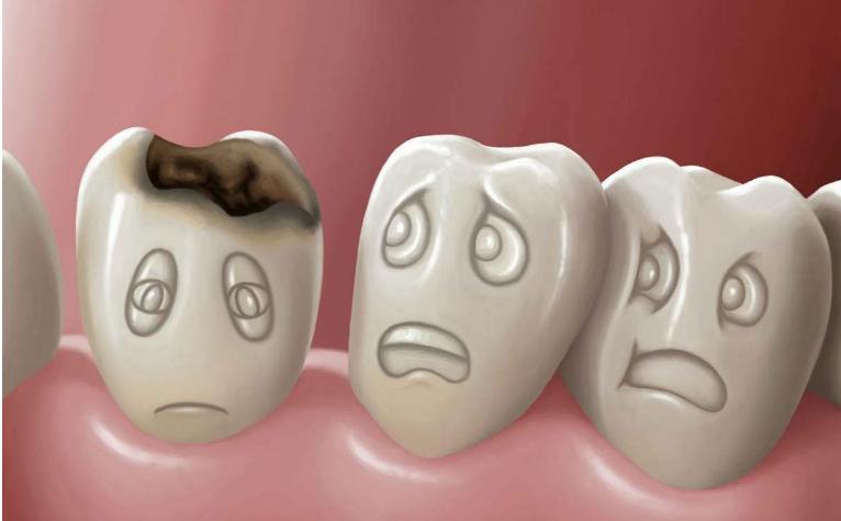 Кариес молочных зубов   в чем причина