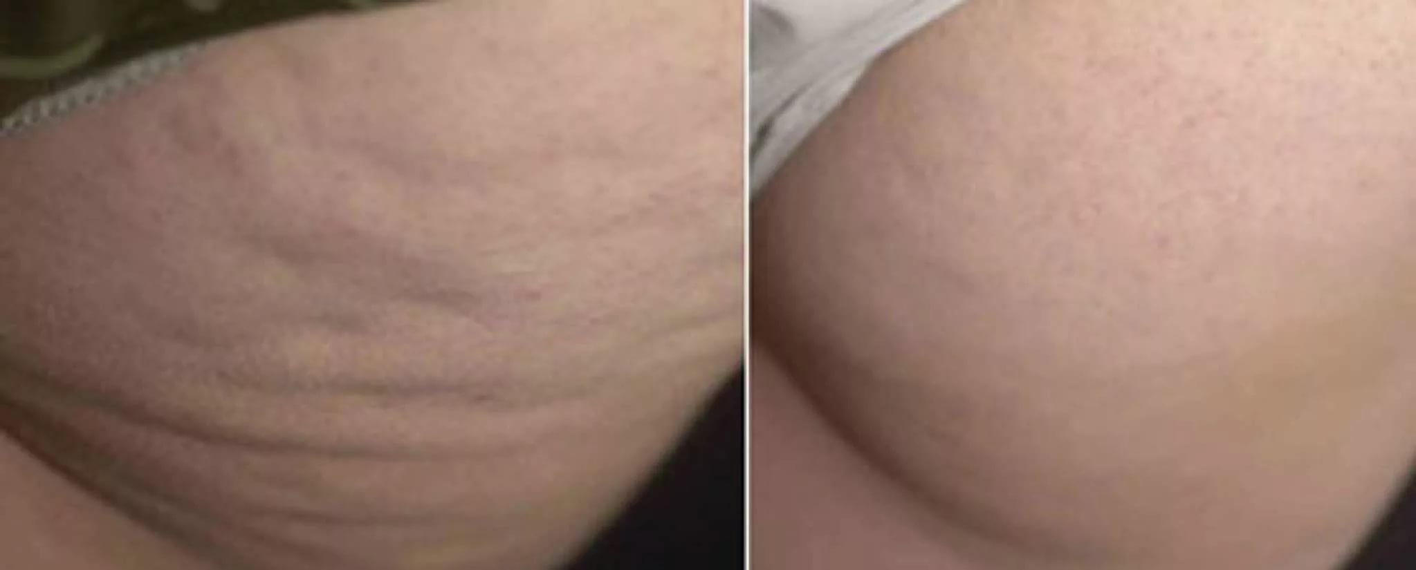 ozonoterapia cellulite