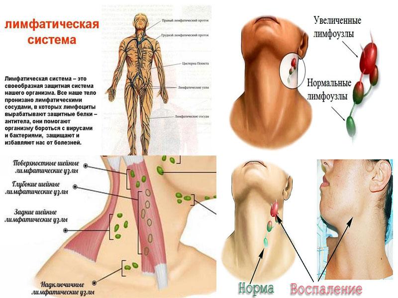 Воспаление лимфоузлов на шее лечение в домашних условиях