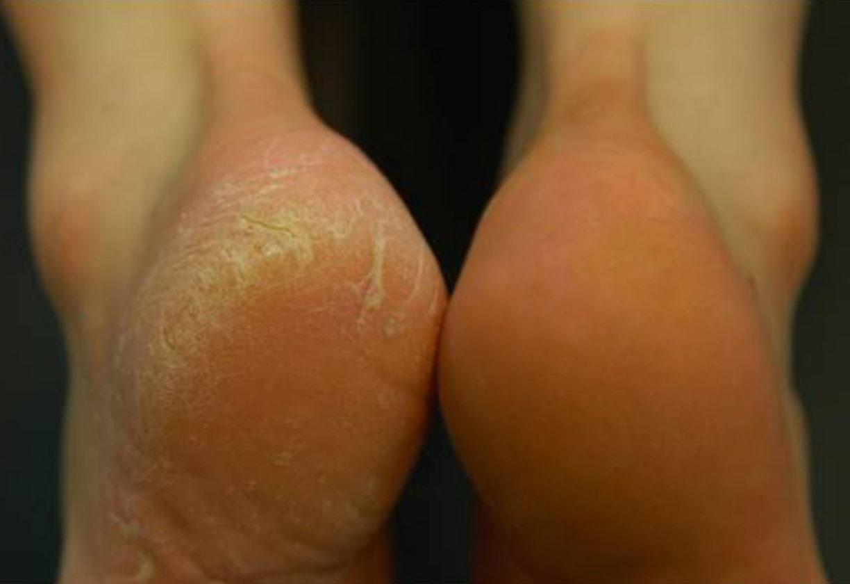 Как лечить трещины пяток в домашних условиях 850