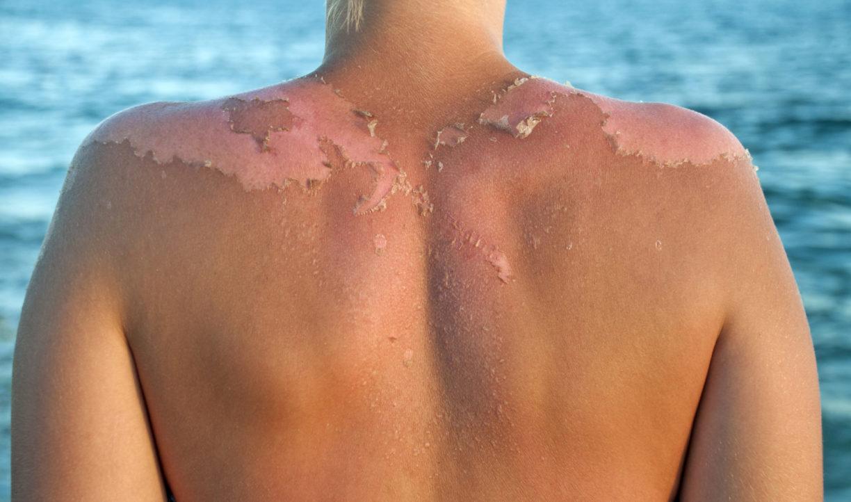 Солнечный ожог чтобы кожа не шелушилась