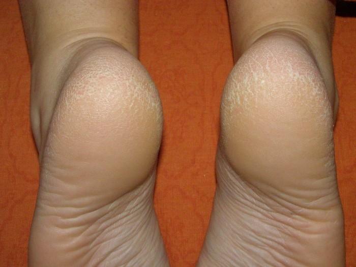 На большом пальце ноги кожа как чешуя