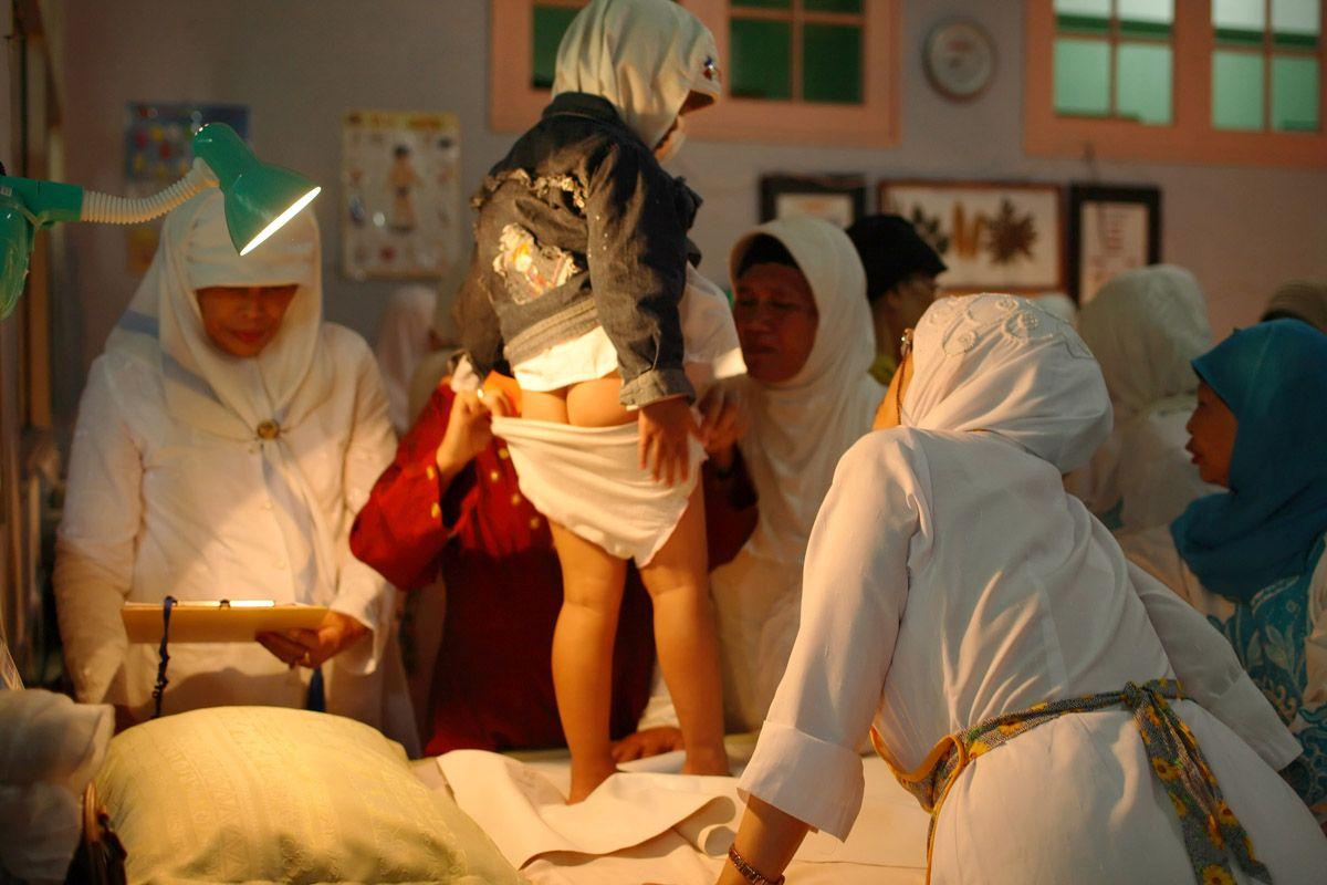 Обрезание женского полового органа