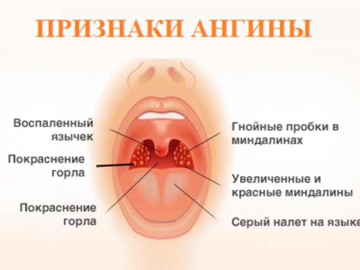 Тонзиллит и фарингит симптомы и лечение