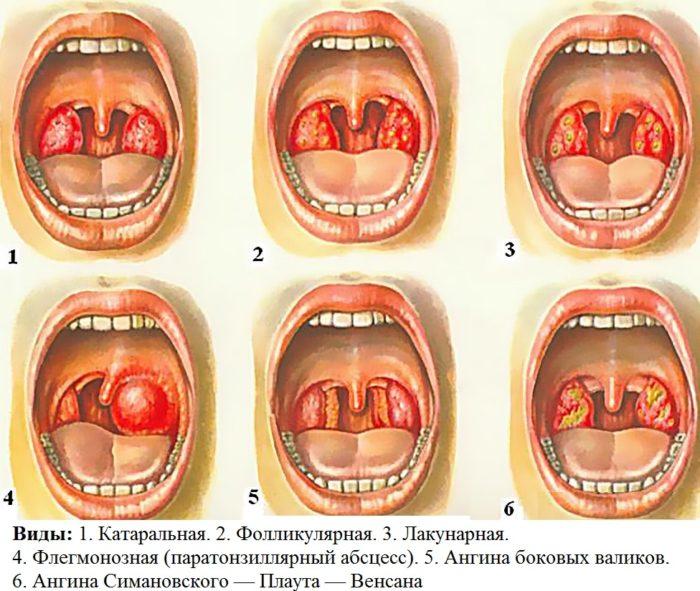 Ангина грудничок лечение в домашних условиях