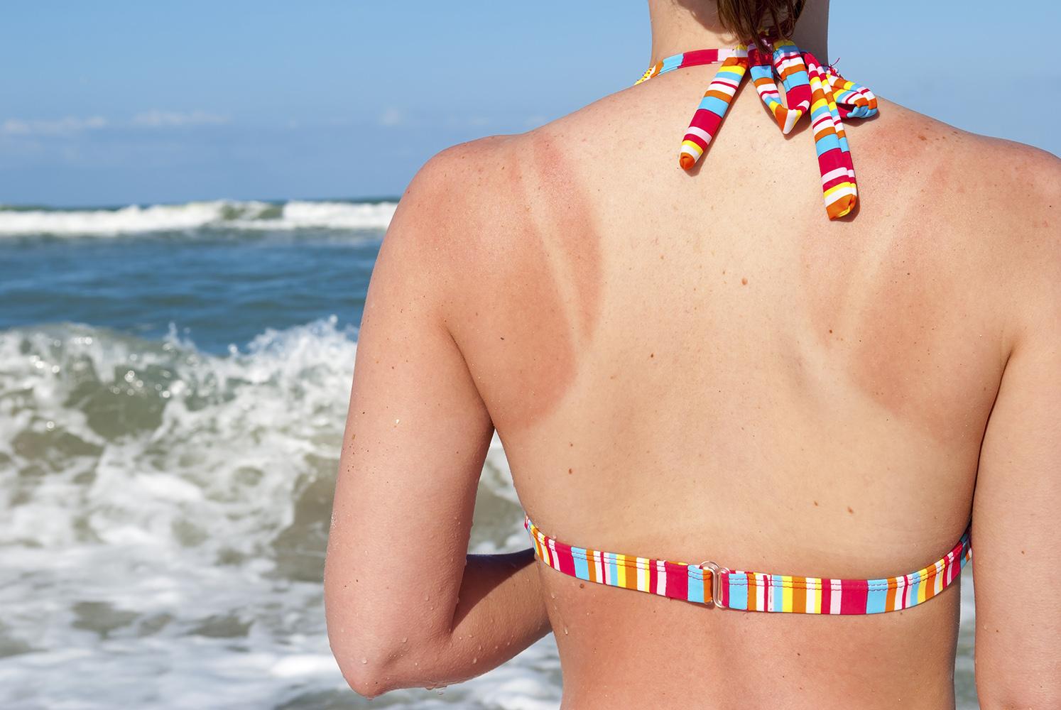 Что делать, если обгорел на солнце: первая помощь взрослому и ребенку. Как лечить кожу, которая болит после загара